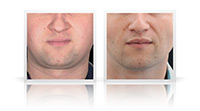 Buccal fat reduction, VASER Liposelection to cheeks, jawline and chin.